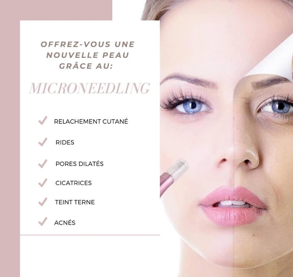 Découvrez le microneedling